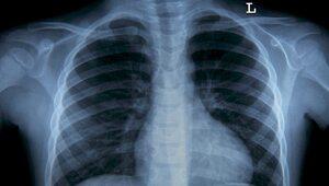 Naukowcy: COVID-19 wyzwala w płucach nieoczekiwany mechanizm