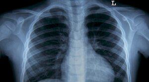 Jak leczy się w Polsce 2020. Biała plama w leczeniu raka płuca