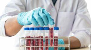 Hemofilia: Brak lekarzy i ośrodków dla dorosłych utrudnia opiekę nad...