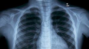 Eksperci: Raka płuca już dziś można leczyć skuteczniej