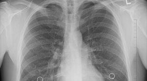 """Biała plama w leczeniu drobnokomórkowego raka płuca. """"Dzieci Gorszego..."""