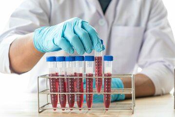 Krew w próbówkach, zdjęcie ilustracyjne